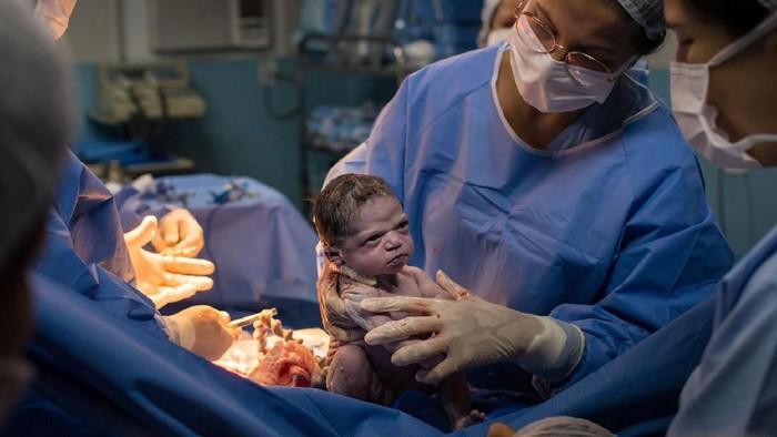 Baru Dilahirkan, Bayi ini Langsung Pasang Muka Cemberut