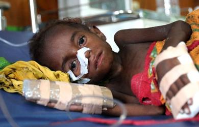 Gizi Buruk di Asmat Papua, Ini Ternyata Penyebabnya