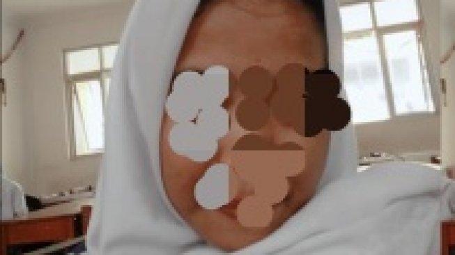 Bocah 4 SD Diperkosa Kakek-kakek, Nenek Tirinya Diperiksa Polisi