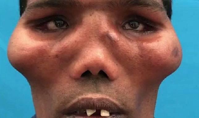20 Tahun Pria 'Berwajah Singa' Ini Hidup, Setelah Operasi Tampilannya Jadi Bikin Orang Pangling