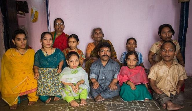 Satu Keluarga Bertubuh Kerdil, Kisah Mereka Menyayat Hati