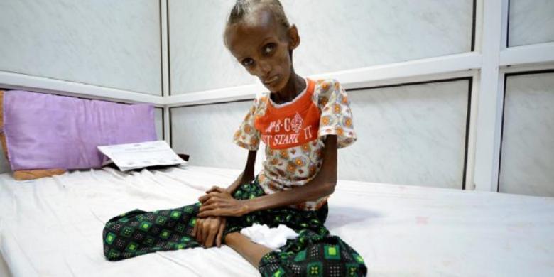 PBB: Tahun Ini Yaman Terancam Bencana Kelaparan Hebat
