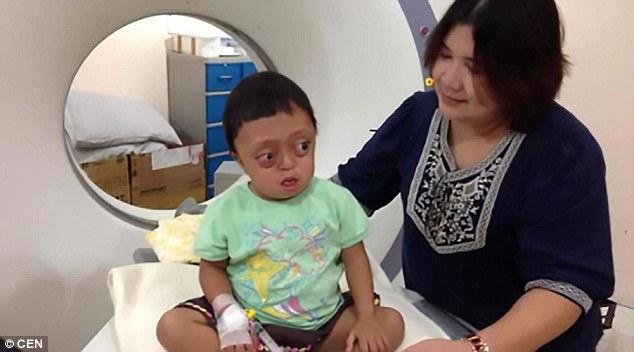 Kisah Hidup Anak Cacat yang Dijual ke Preman ini Sangat Menyentuh Hati