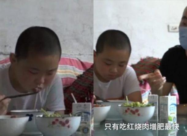Bocah ini Terpaksa Makan 5 Kali Sehari Demi Selamatkan Ayahnya, Berikut Kisahnya