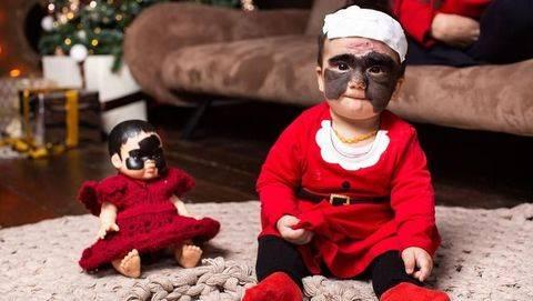 Operasi Tanda Lahir 'Batman' di Wajah Bayi Ini Tanpa Bekas Luka