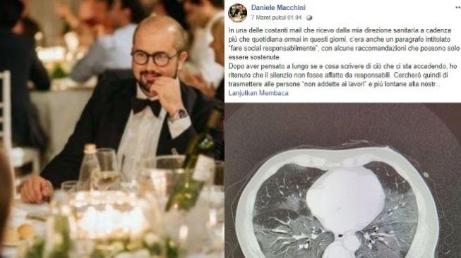 RS Italia Kewalahan Tangani Corona, Dokter Curhat: Seperti Hadapi Tsunami
