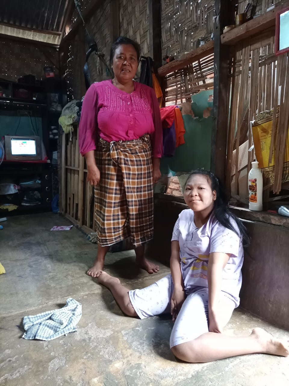 Gadis 17 Tahun ini Tak Bisa Berjalan, Butuh Perhatian Pemerintah dan Dermawan