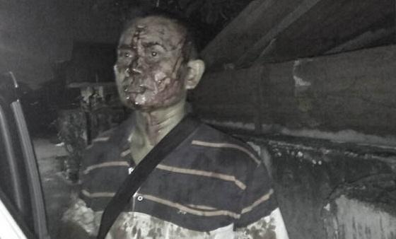 Sempat Duel, Sopir GrabCar Lolos dari Percobaan Perampokan oleh Oknum Karyawan Alfamart
