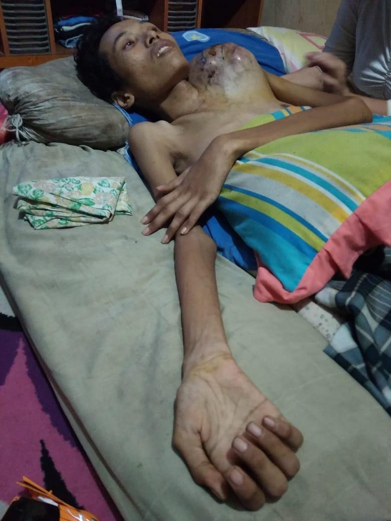 Rafii Putra, Penderita Osteosarcoma Asal Teluk Pinang, Inhil Butuh Uluran Tangan